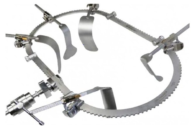 Bookwalter Retractor